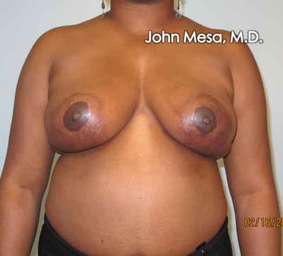 Breast Reduction Gallery - Patient 6371462 - Image 4