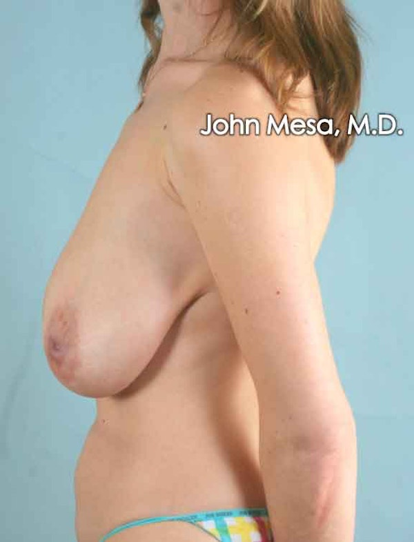 Breast Lift Gallery - Patient 6371461 - Image 7