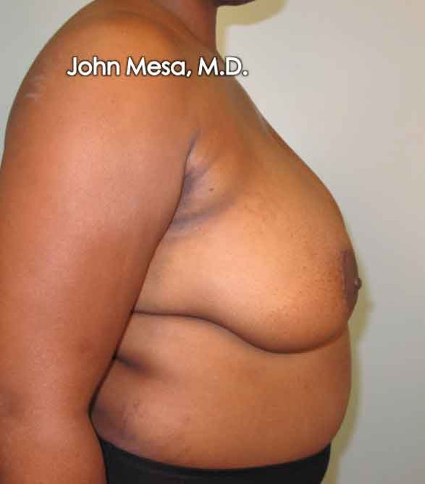 Breast Reduction Gallery - Patient 6371462 - Image 5