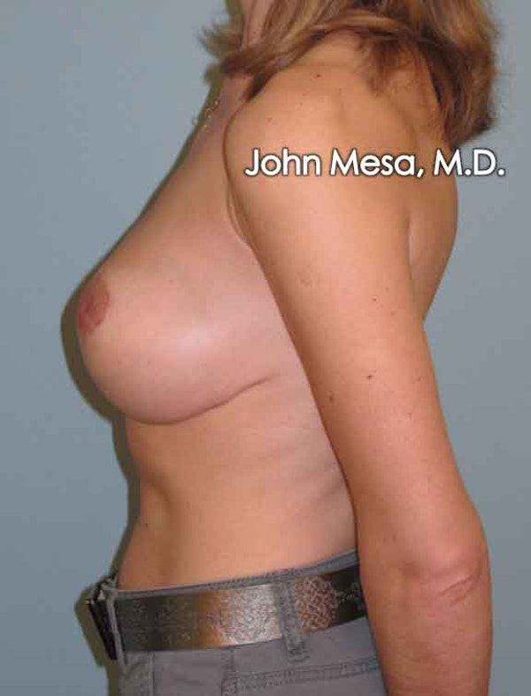 Breast Lift Gallery - Patient 6371461 - Image 8