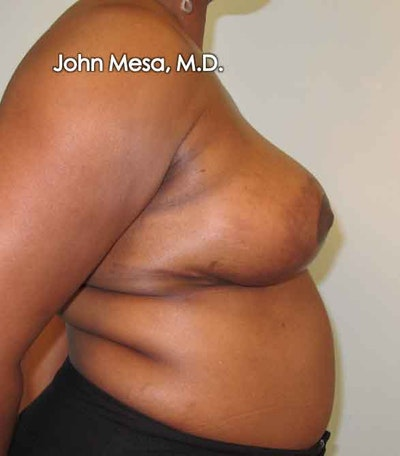Breast Reduction Gallery - Patient 6371462 - Image 6