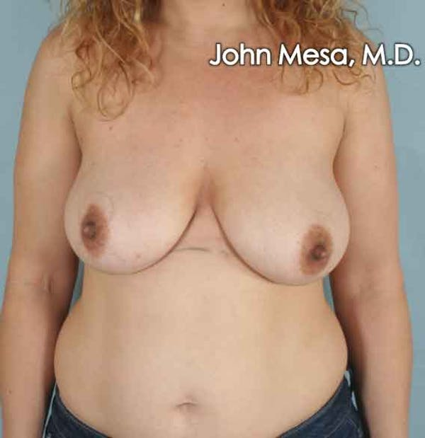 Breast Lift Gallery - Patient 6371464 - Image 1