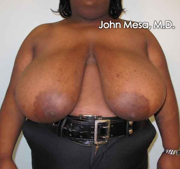 Breast Reduction Gallery - Patient 6371463 - Image 1