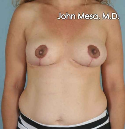 Breast Lift Gallery - Patient 6371464 - Image 2