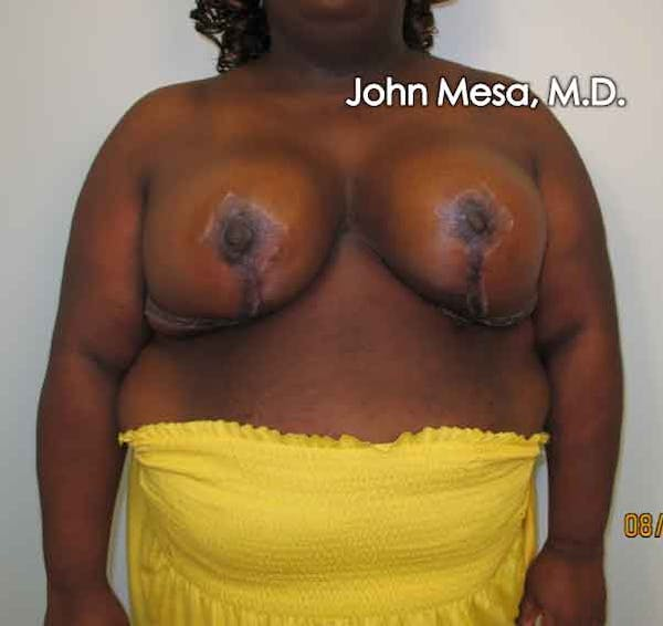 Breast Reduction Gallery - Patient 6371463 - Image 2