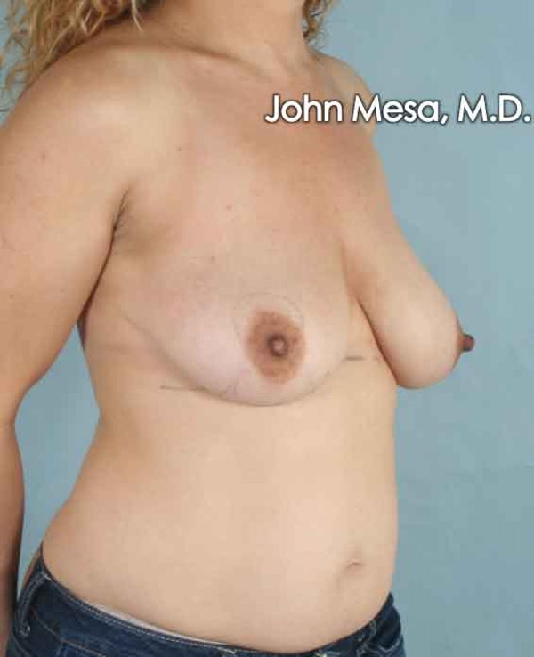 Breast Lift Gallery - Patient 6371464 - Image 3