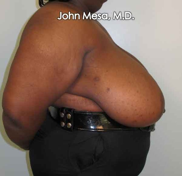Breast Reduction Gallery - Patient 6371463 - Image 3