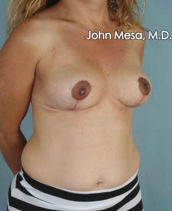 Breast Lift Gallery - Patient 6371464 - Image 4