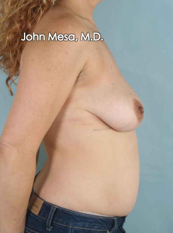 Breast Lift Gallery - Patient 6371464 - Image 5