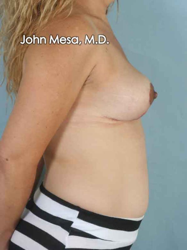 Breast Lift Gallery - Patient 6371464 - Image 6