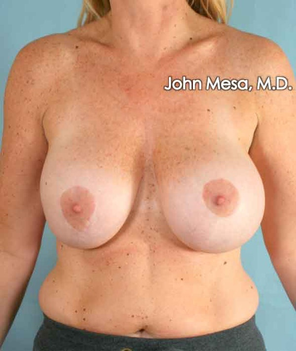 Breast Surgery Revision Gallery - Patient 6371485 - Image 1