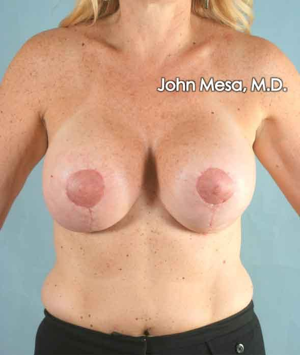 Breast Surgery Revision Gallery - Patient 6371485 - Image 2