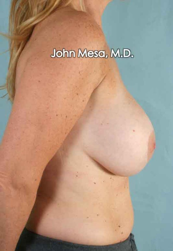 Breast Surgery Revision Gallery - Patient 6371485 - Image 3