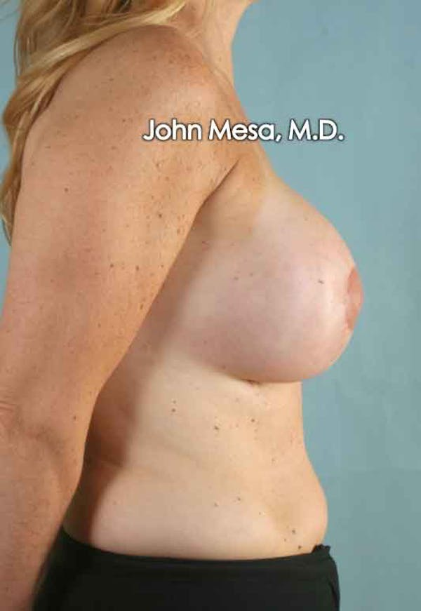 Breast Surgery Revision Gallery - Patient 6371485 - Image 4