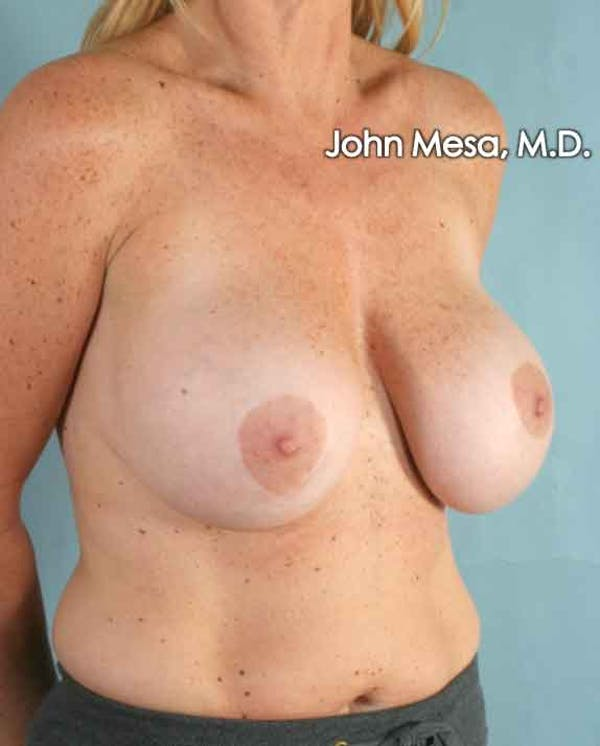 Breast Surgery Revision Gallery - Patient 6371485 - Image 5