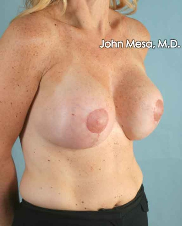 Breast Surgery Revision Gallery - Patient 6371485 - Image 6