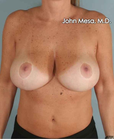 Breast Surgery Revision Gallery - Patient 6371497 - Image 1