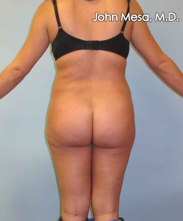 Brazilian Butt Lift Gallery - Patient 6371487 - Image 1