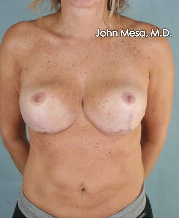 Breast Surgery Revision Gallery - Patient 6371497 - Image 2