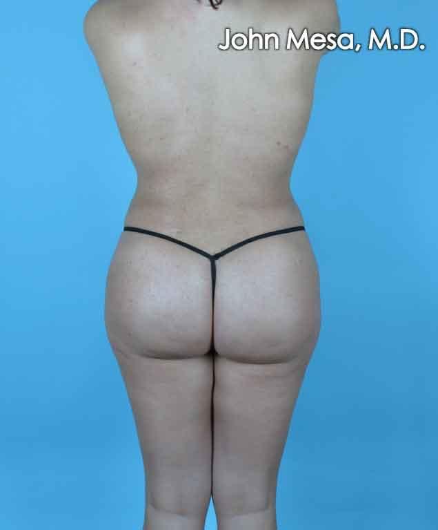 Brazilian Butt Lift Gallery - Patient 6371487 - Image 2
