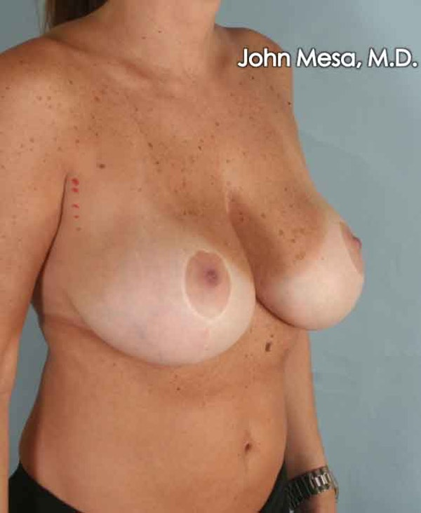 Breast Surgery Revision Gallery - Patient 6371497 - Image 3