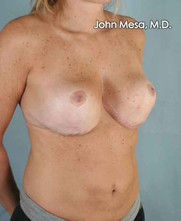 Breast Surgery Revision Gallery - Patient 6371497 - Image 4
