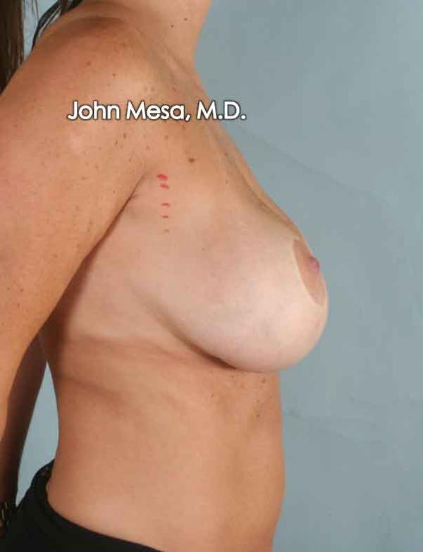 Breast Surgery Revision Gallery - Patient 6371497 - Image 5
