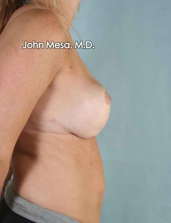 Breast Surgery Revision Gallery - Patient 6371497 - Image 6