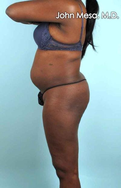 Brazilian Butt Lift Gallery - Patient 6371499 - Image 1
