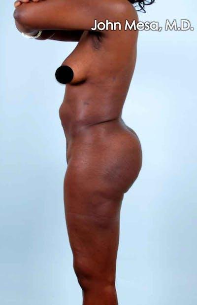 Brazilian Butt Lift Gallery - Patient 6371499 - Image 2