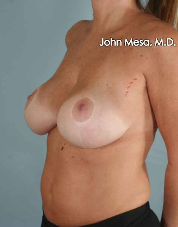 Breast Surgery Revision Gallery - Patient 6371497 - Image 7