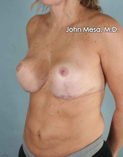 Breast Surgery Revision Gallery - Patient 6371497 - Image 8