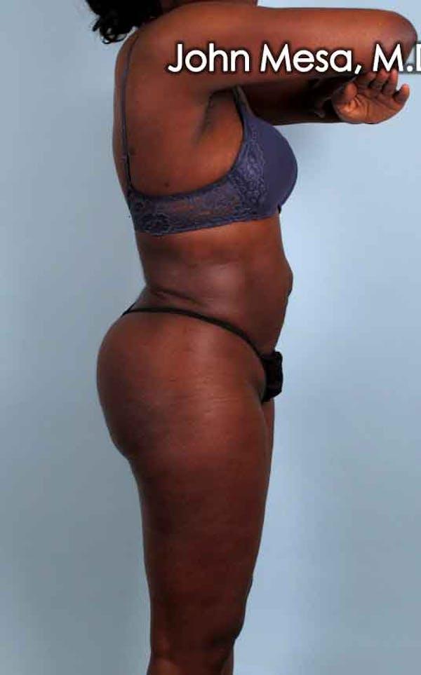 Brazilian Butt Lift Gallery - Patient 6371499 - Image 4