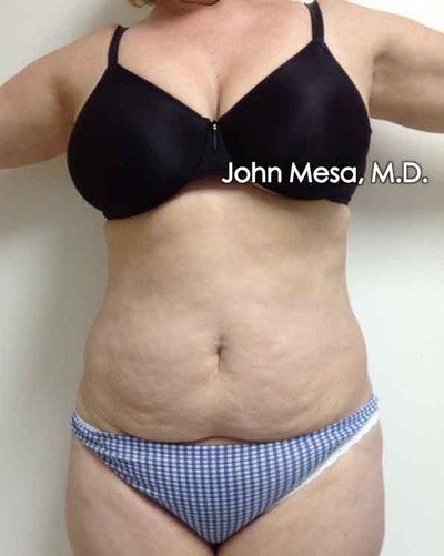 Tummy Tuck (Brazilian Tummy Tuck) Gallery - Patient 6371502 - Image 1