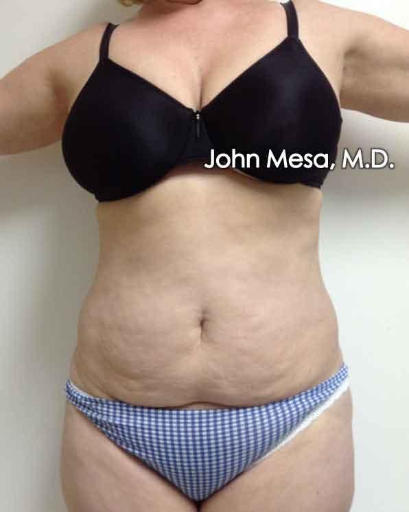 Tummy Tuck (Brazilian Tummy Tuck) Gallery - Patient 6371502 - Image 1