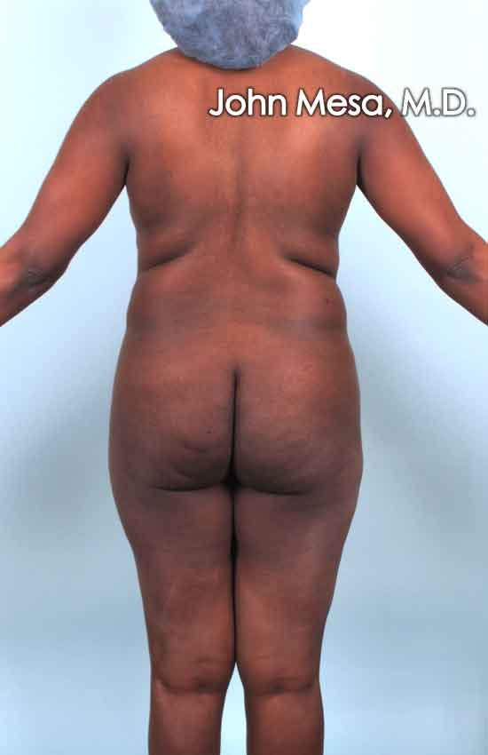 Brazilian Butt Lift Gallery - Patient 6371503 - Image 1