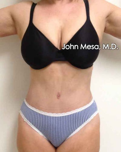 Tummy Tuck (Brazilian Tummy Tuck) Gallery - Patient 6371502 - Image 2