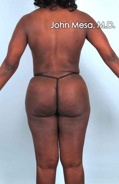Brazilian Butt Lift Gallery - Patient 6371503 - Image 2
