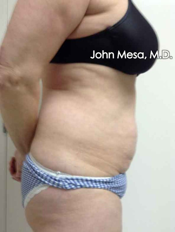 Tummy Tuck (Brazilian Tummy Tuck) Gallery - Patient 6371502 - Image 3