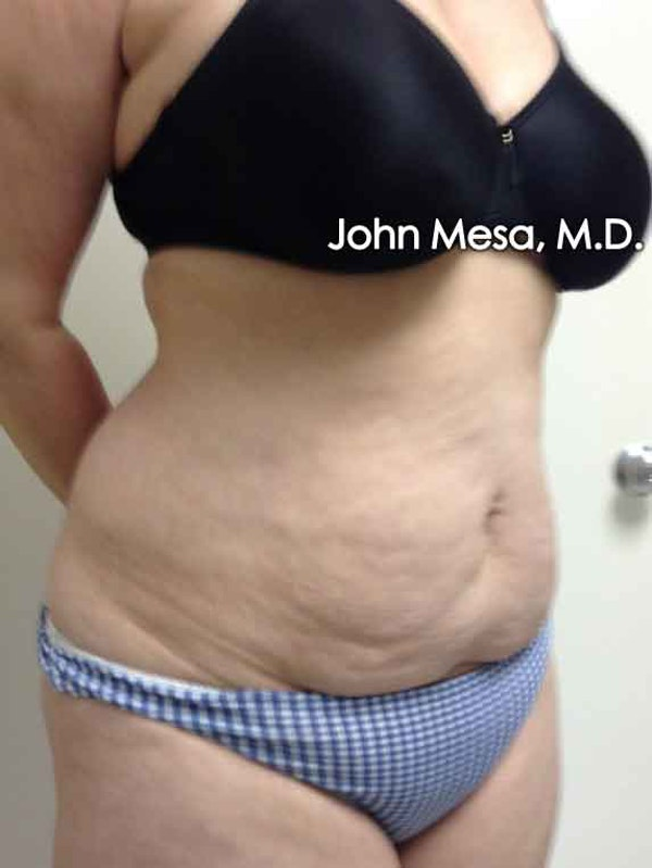 Tummy Tuck (Brazilian Tummy Tuck) Gallery - Patient 6371502 - Image 5