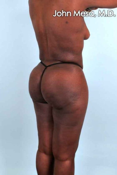Brazilian Butt Lift Gallery - Patient 6371503 - Image 4