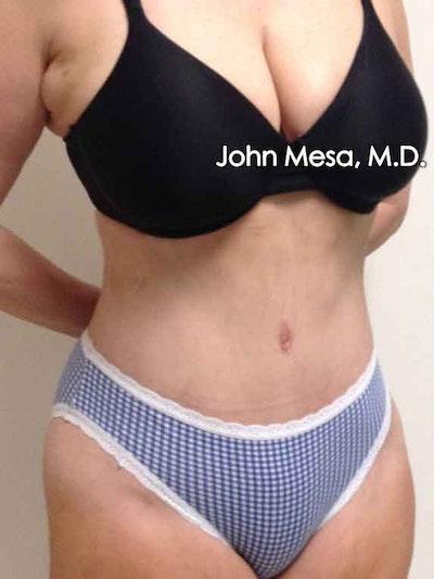 Tummy Tuck (Brazilian Tummy Tuck) Gallery - Patient 6371502 - Image 6