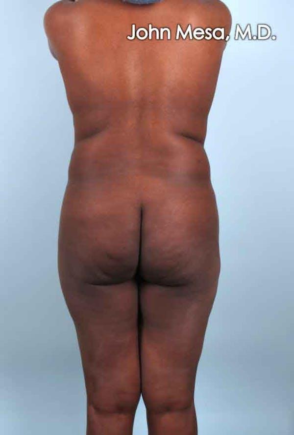 Brazilian Butt Lift Gallery - Patient 6371503 - Image 5
