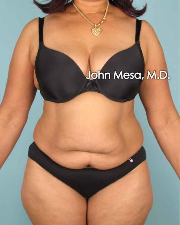 Tummy Tuck (Brazilian Tummy Tuck) Gallery - Patient 6371505 - Image 1