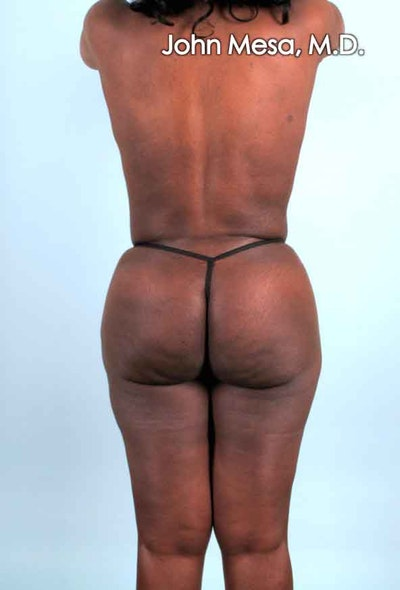 Brazilian Butt Lift Gallery - Patient 6371503 - Image 6