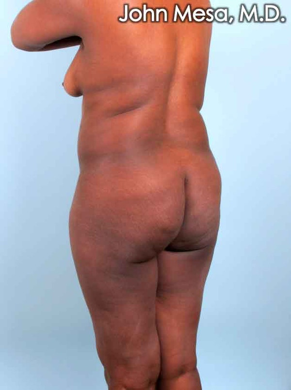 Brazilian Butt Lift Gallery - Patient 6371503 - Image 7