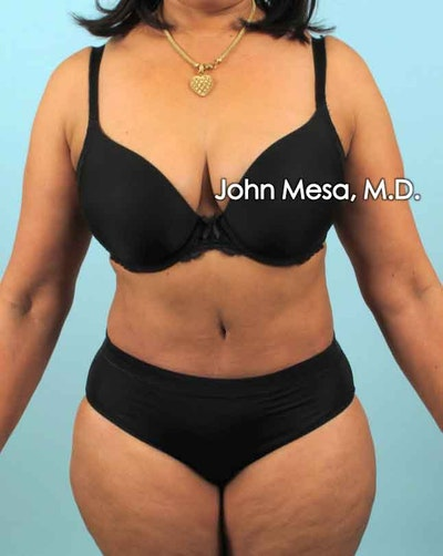 Tummy Tuck (Brazilian Tummy Tuck) Gallery - Patient 6371505 - Image 2