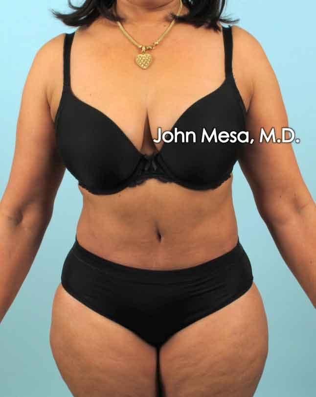 Tummy Tuck (Brazilian Tummy Tuck) Gallery - Patient 6371505 - Image 2