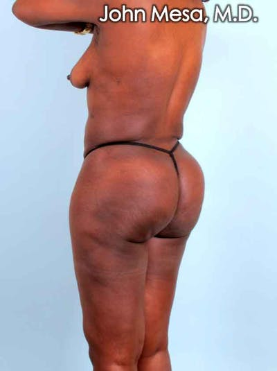 Brazilian Butt Lift Gallery - Patient 6371503 - Image 8