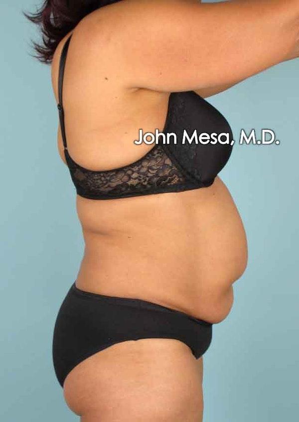 Tummy Tuck (Brazilian Tummy Tuck) Gallery - Patient 6371505 - Image 3